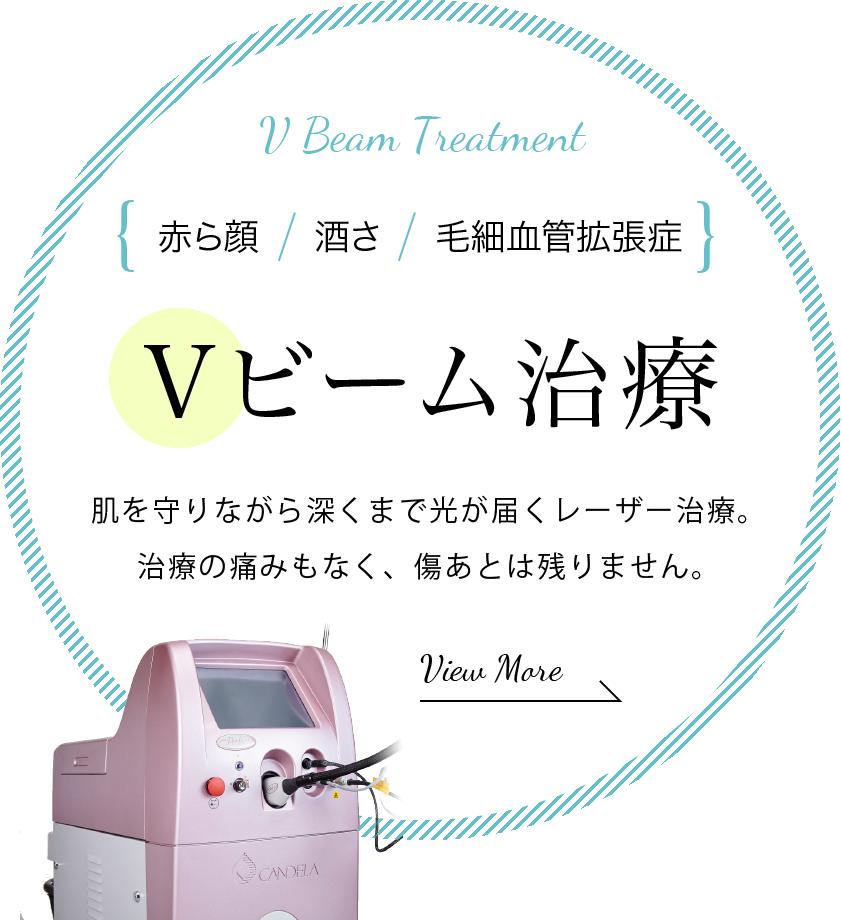 赤ら顔・酒さ・毛細血管拡張症のVビーム治療
